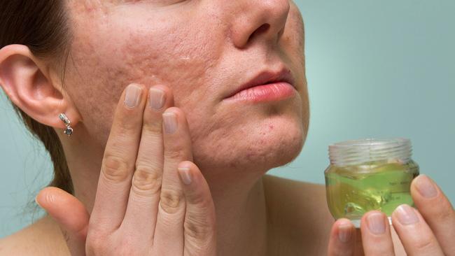 Thực hư chuyện Vitamin E giúp làm mờ vết sẹo - Ảnh 3.